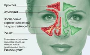 Синусит (затяжной насморк)